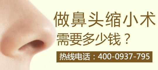 鼻孔整形美容术