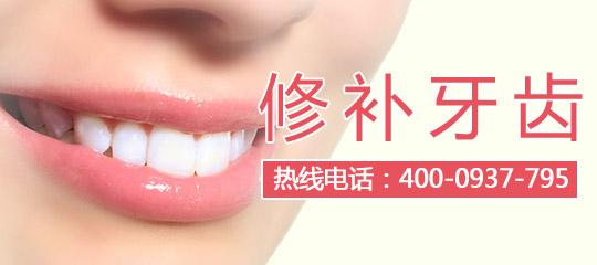 牙齿整形要多少费用