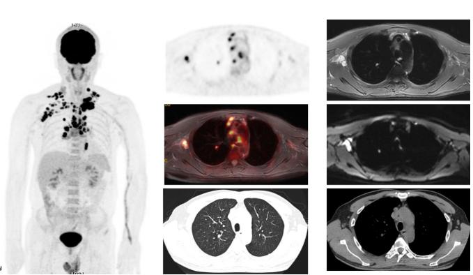 PET/MR案列 PET/MR在肺部结节诊断中的应用
