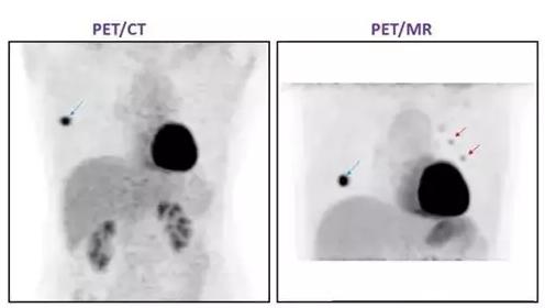 PET/MR优势 PET/MR对乳腺癌检查优势