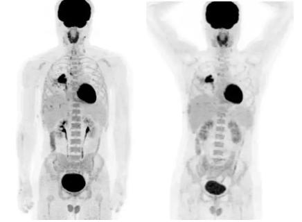 PET/MR检查|如何分辨一幅PET图像是来自于PET/CT检查还是PET/MR检查?