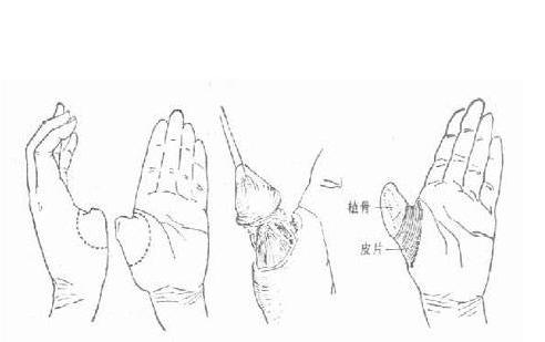拇指再造的手術方式