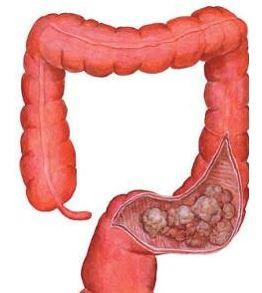 结肠癌引发肠梗阻