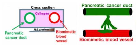 Science Advances讲述器官芯片革新胰腺癌研究