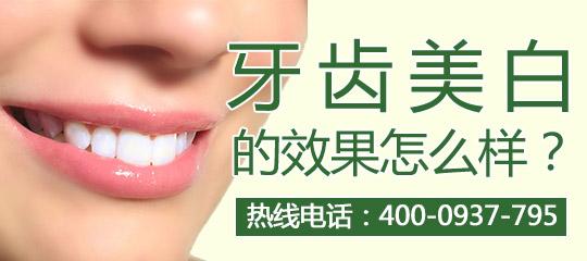 冷光牙齿美白的好处有哪些