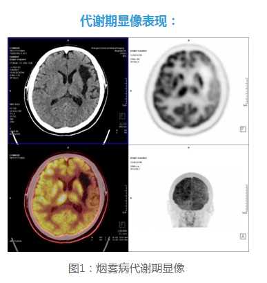 PET/CT双期相扫描在烟雾病诊断中的应用