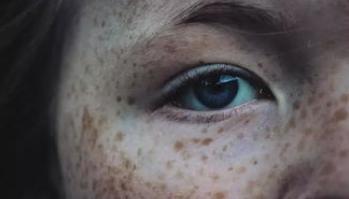 彩光祛斑与激光的区别