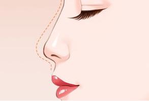 隆鼻假体取出要多久恢复