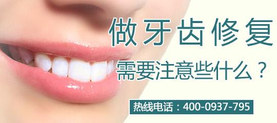 牙齿矫正哪些更美观