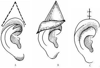 隐耳需要不需要做矫正手术