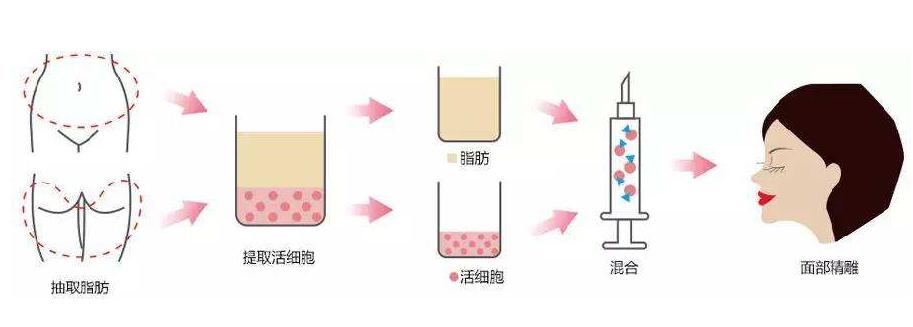 自体吸脂填充和玻尿酸注射填充的优势劣势大PK