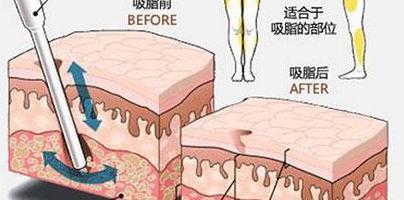 吸脂瘦小腿,有哪些特点?适用于哪些人群?