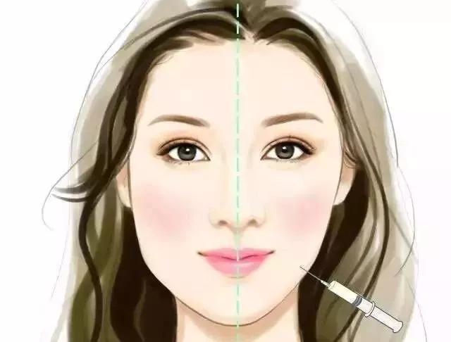 男生打瘦 脸针效果明显嘛?瘦 脸针几天有效果?