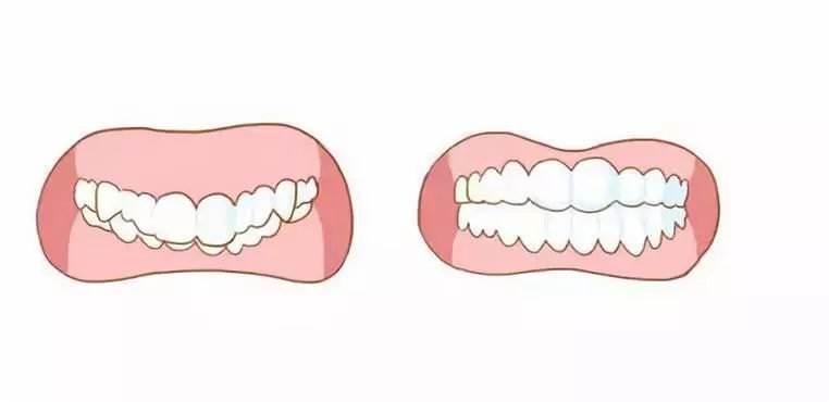 广州牙齿整形为什么牙齿很整齐还要去矫正牙齿?