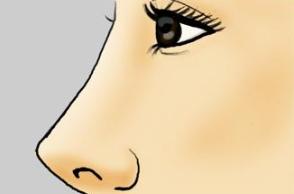 硅胶隆鼻安全吗