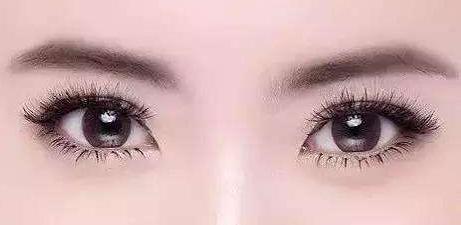 学生变双眼皮的土方法有哪些