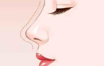 扁鼻子适合什么发型