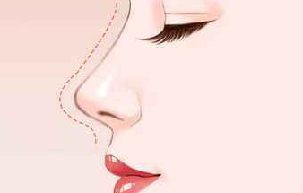 鼻子整形钱多少?