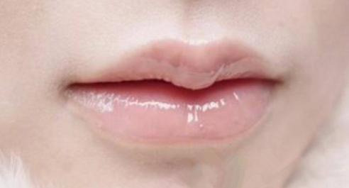 唇珠大好不好看