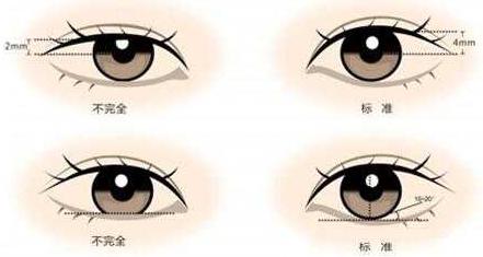 眼袋大怎么消除?