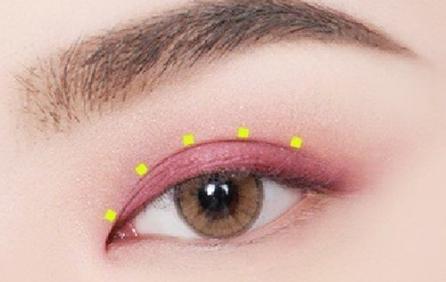 什么是眼睑下至术? 眼睑下至效果好吗?