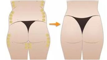 臀部吸脂注意事项