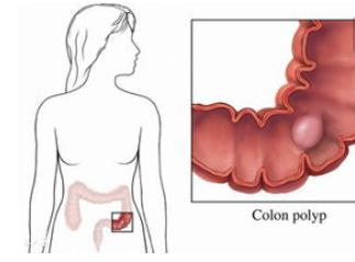 结肠癌及其致病原因揭秘,高危人群需定期体检