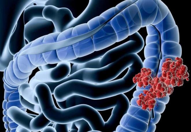 结肠癌分期进行手术治疗,复发机率大吗?