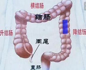 肠镜对身体到底有没有影响?为什么说45岁的人群适合做肠镜检查?