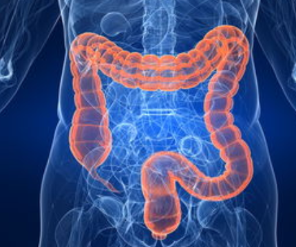 结肠癌化疗期间饮食注意事项都有哪些?