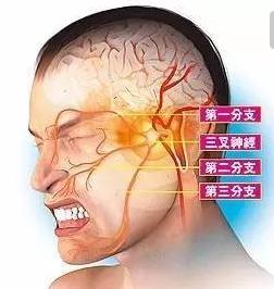 伽玛刀能治疗三叉神经痛吗