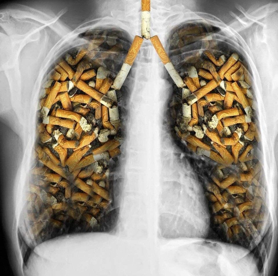如何治疗肺癌?