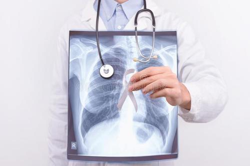肺癌高危人群
