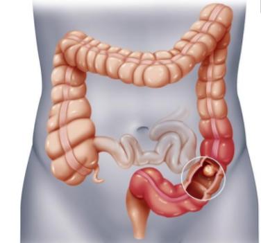 大肠癌高发,日常生活饮食中该注意些什么?