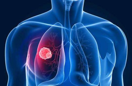 为什么肺癌转移得快?肺癌可以转移到哪些部位?