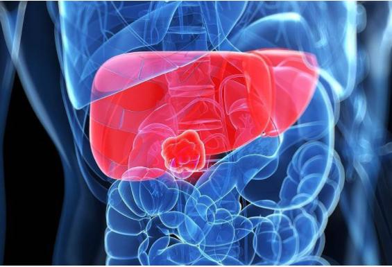 什么时候算是肝癌晚期?肝癌晚期能够活多久?