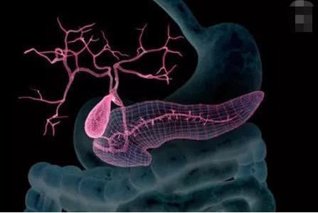 胰腺早期发现癌变可通过根治性手术治疗