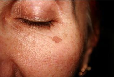 人老了为什么会有老年斑?别不把老年斑当回事,皮肤癌正在慢慢靠近你!