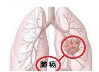 肺癌筛查建议