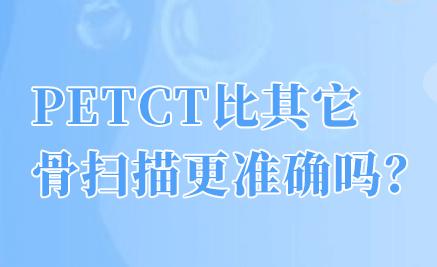 PETCT检查的重大意义是什么