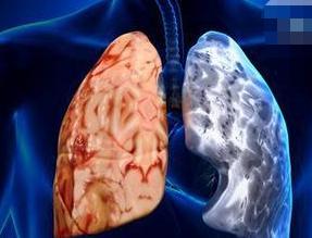 小细胞肺癌(SCLC)占所有肺癌的20%