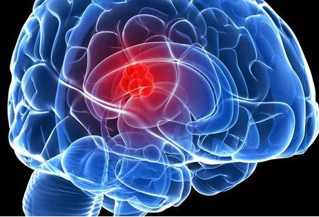 脑肿瘤患者选择放射治疗好吗?是利大于弊还是弊大于利?