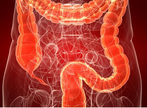 结肠癌术后能活多久?生存率高吗?