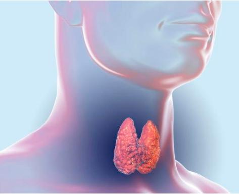 如何来区分甲状腺癌的早期、中期、晚期?