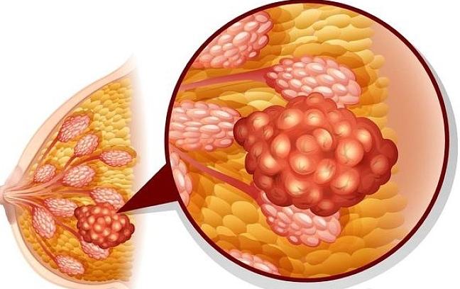 解读乳腺癌的八大误区