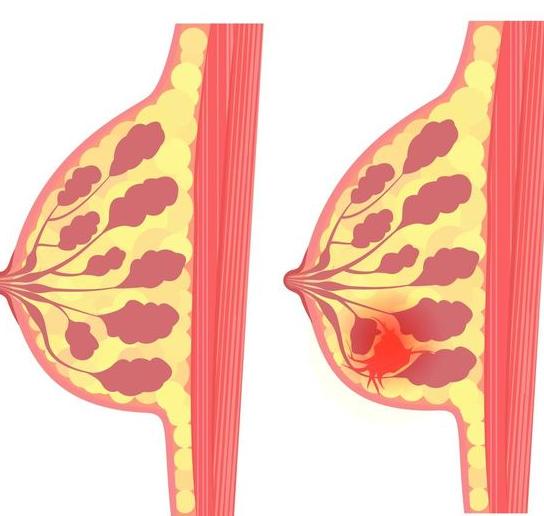 预防乳腺癌需要做哪些检查?