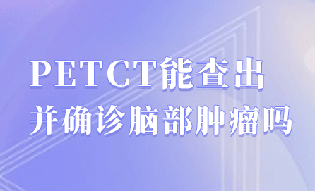 PETCT可用于哪些肿瘤之外的临床诊疗?