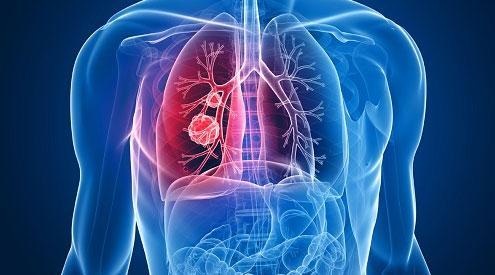 造成肺癌的病因有哪几点?如何预防肺癌的发生?