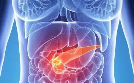 胰腺癌有哪些突出的症状?胰腺癌有哪些治疗方法?
