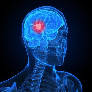 经历了脑瘤手术,护理应该注意些什么!!